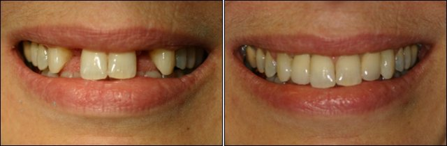 Two dental implants for lateral incisors