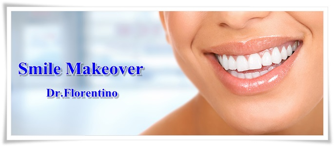 Smile Makeover Dominican Republic
