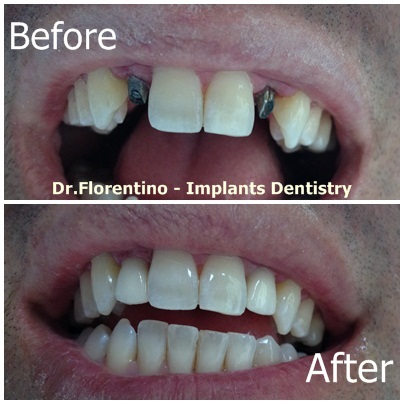 2 dental implants for lateral incisors