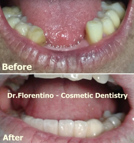 Porcelain Bridge for lower incisors
