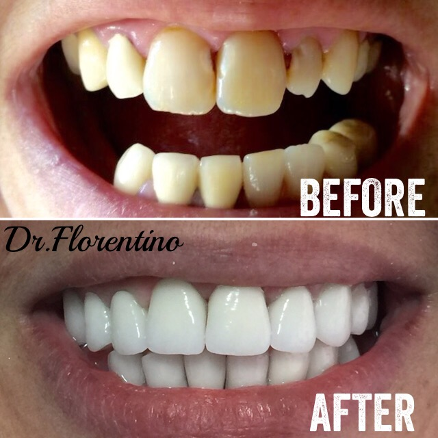 Smile MakeOver with Zirconia Crowns(metal free)